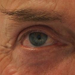 Chirurgia plastica viso, intervento di blefaroplastica, caso 153 - Dopo