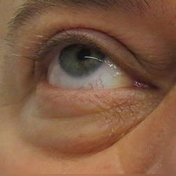 Chirurgia plastica viso, intervento di blefaroplastica, caso 156 - Prima