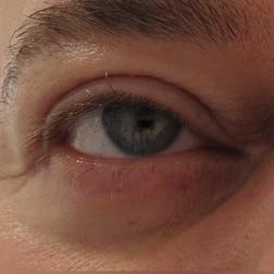Chirurgia plastica viso, intervento di blefaroplastica, caso 156 - Dopo