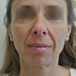 Chirurgia plastica viso, intervento di lifting, caso 157 - Prima