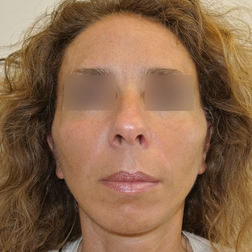 Chirurgia plastica viso, intervento di lifting, caso 157 - Dopo