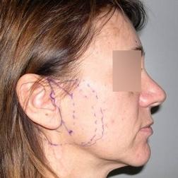 Chirurgia plastica viso, intervento di lifting, caso 158 - Prima