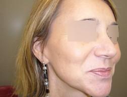 Chirurgia plastica viso, intervento di lifting, caso 158 - Dopo