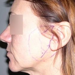 Chirurgia plastica viso, intervento di lifting, caso 159 - Prima