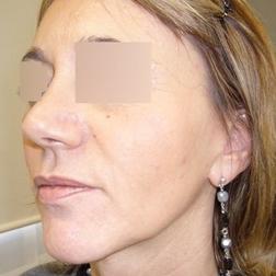 Chirurgia plastica viso, intervento di lifting, caso 159 - Dopo