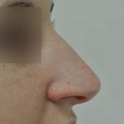 Chirurgia plastica viso, intervento di rinosettoplastica, caso 172 - Prima