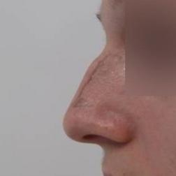 Chirurgia plastica viso, intervento di rinosettoplastica, caso 173 - Prima