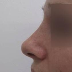 Chirurgia plastica viso, intervento di rinosettoplastica, caso 173 - Dopo