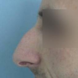 Chirurgia plastica viso, intervento di rinosettoplastica, caso 175 - Prima