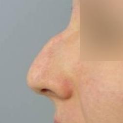 Chirurgia plastica viso, intervento di rinoplastica, caso 162 - Prima
