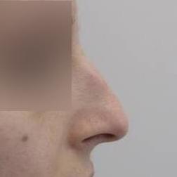 Chirurgia plastica viso, intervento di rinoplastica, caso 163 - Prima
