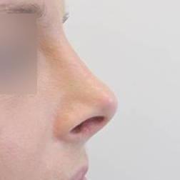 Chirurgia plastica viso, intervento di rinoplastica, caso 163 - Dopo
