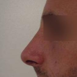 Chirurgia plastica viso, intervento di rinosettoplastica, caso 175 - Dopo