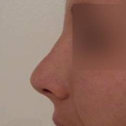 Chirurgia plastica viso, intervento di rinoplastica, caso 162 - Dopo