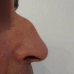 Chirurgia plastica viso, intervento di rinosettoplastica, caso 174 - Prima