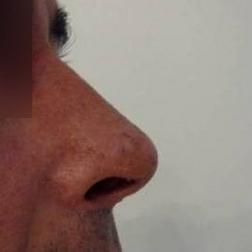 Chirurgia plastica viso, intervento di rinosettoplastica, caso 174 - Dopo