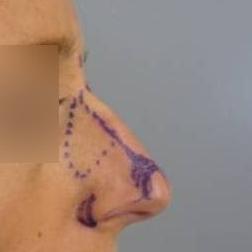 Chirurgia plastica viso, intervento di rinoplastica, caso 167 - Prima