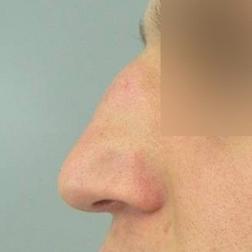 Chirurgia plastica viso, intervento di rinoplastica, caso 168 - Prima