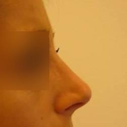 Chirurgia plastica viso, intervento di rinoplastica, caso 167 - Dopo