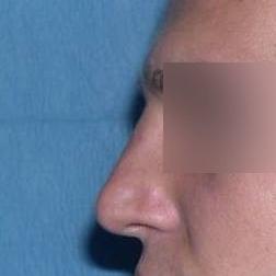 Chirurgia plastica viso, intervento di rinoplastica, caso 168 - Dopo