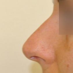 Chirurgia plastica viso, intervento di rinoplastica, caso 170 - Prima