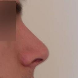 Chirurgia plastica viso, intervento di rinoplastica, caso 169 - Dopo