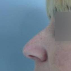 Chirurgia plastica viso, intervento di rinoplastica, caso 171 - Prima