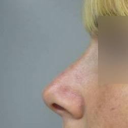 Chirurgia plastica viso, intervento di rinoplastica, caso 171 - Dopo