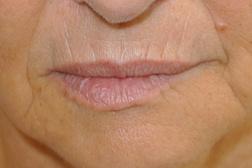 Chirurgia plastica viso, intervento di filler labbra, caso 176 - Prima