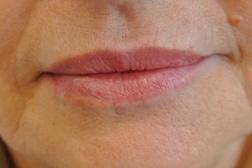 Chirurgia plastica viso, intervento di filler labbra, caso 176 - Dopo