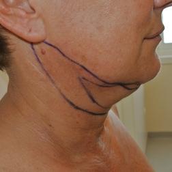 Chirurgia plastica viso, intervento di liposuzione sottomento, caso 177 - Prima