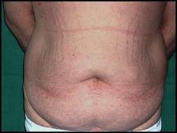 Chirurgia plastica addome, intervento di addominoplastica, caso 147 - Prima