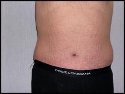 Chirurgia plastica addome, intervento di addominoplastica, caso 147 - Dopo