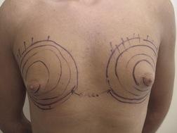 Chirurgia plastica seno, intervento di ginecomastia, caso 183 - Prima