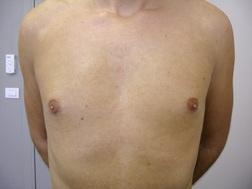 Chirurgia plastica seno, intervento di ginecomastia, caso 183 - Dopo