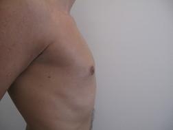 Chirurgia plastica seno, intervento di ginecomastia, caso 184 - Dopo