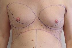 Chirurgia plastica seno, intervento di ginecomastia, caso 185 - Prima