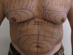 Chirurgia plastica seno, intervento di ginecomastia, caso 187 - Prima
