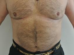 Chirurgia plastica seno, intervento di ginecomastia, caso 187 - Dopo