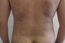 Chirurgia plastica addome, intervento di vibroliposcultura - addome, caso 190 - Dopo