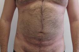 Chirurgia plastica addome, intervento di vibroliposcultura - addome, caso 191 - Dopo