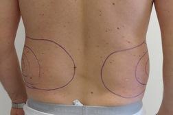 Chirurgia plastica addome, intervento di vibroliposcultura - addome, caso 192 - Prima