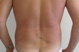Chirurgia plastica addome, intervento di vibroliposcultura - addome, caso 192 - Dopo