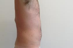 Chirurgia plastica addome, intervento di vibroliposcultura - addome, caso 193 - Dopo