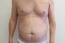 Chirurgia plastica addome, intervento di vibroliposcultura - addome, caso 195 - Prima