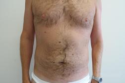 Chirurgia plastica addome, intervento di vibroliposcultura - addome, caso 195 - Dopo