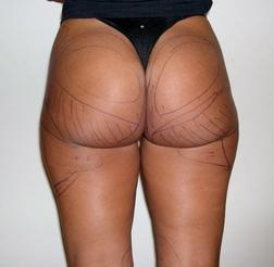 Chirurgia plastica gambe e glutei, intervento di vibroliposcultura - gambe e glutei, caso 199 - Prima