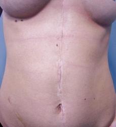 Chirurgia plastica viso, intervento di correzione cicatrici, caso 200 - Prima