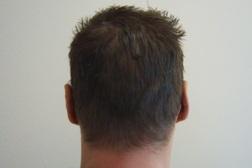 Chirurgia plastica viso, intervento di otoplastica, caso 202 - Dopo