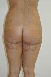 Chirurgia plastica gambe e glutei, intervento di vibroliposcultura - gambe e glutei, caso 207 - Prima